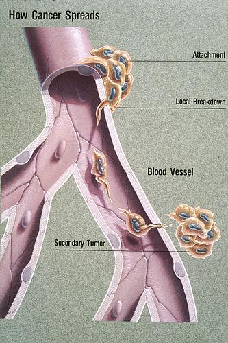 cancer mamar femei virus del papiloma en el ano tratamiento
